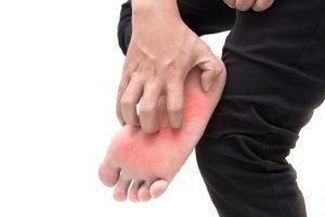 טיפול בפטריות ברגליים